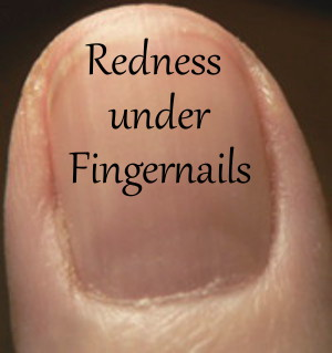 Redness under Fingernails
