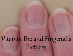 Vitamin B12 and Fingernails Pictures
