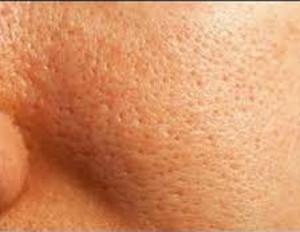 Large pores