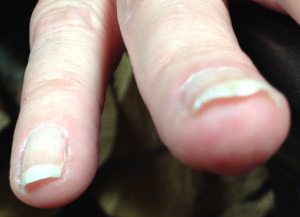 Bending Fingernail viewed from the front