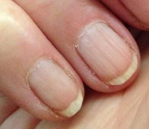 bending fingernail viewed from on top