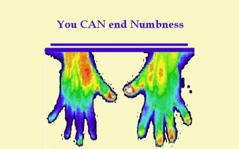 Numbness Ended - Digital Thermography shows numbness in the hand on the left