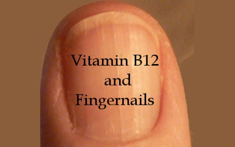 Vitamin B12 and Fingernails