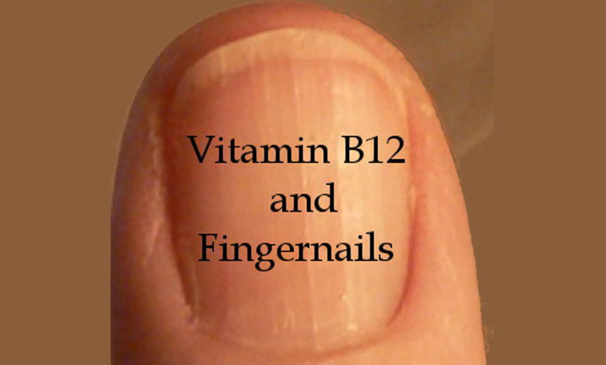 B12 and Fingernails