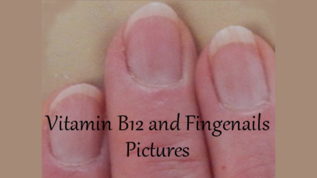 Vitamin B12 and Fingernails Pictures · Health Boundaries