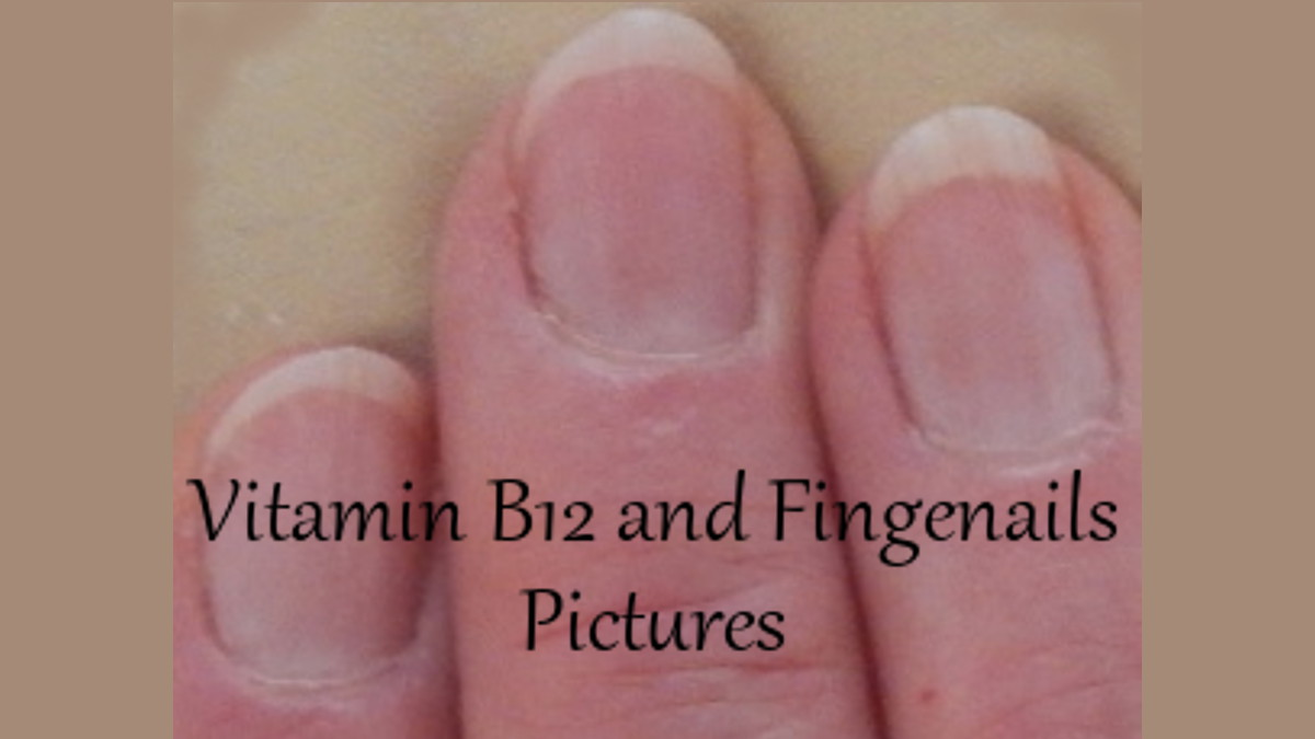 Fingernail Pictures re B12